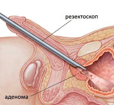 Узи рака предстательной железы трансректально