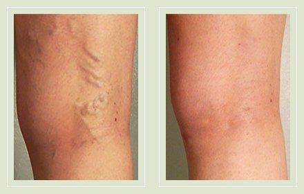 Фото до и после операции по удалению варикоза на ногах лазером