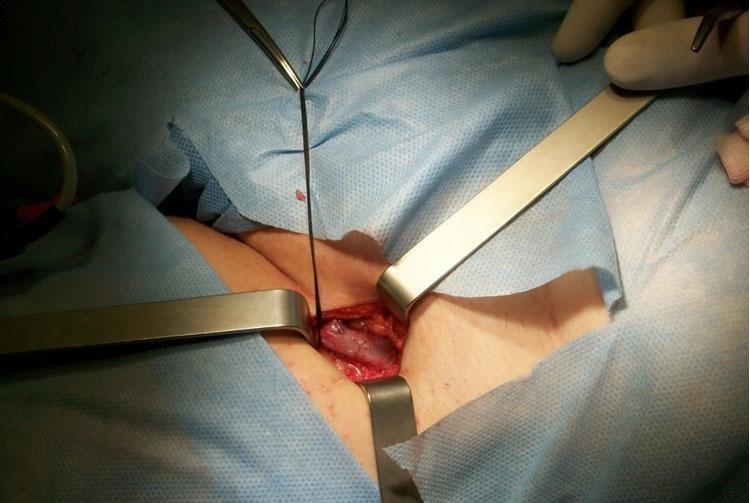 Хирургическое удаление варикоза