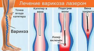 Лазерное лечение варикоза (флебэктомия)