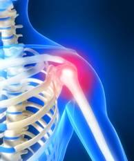 Однополюсное эндопротезирование плечевого сустава.