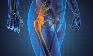 Рентген тазобедренного сустава