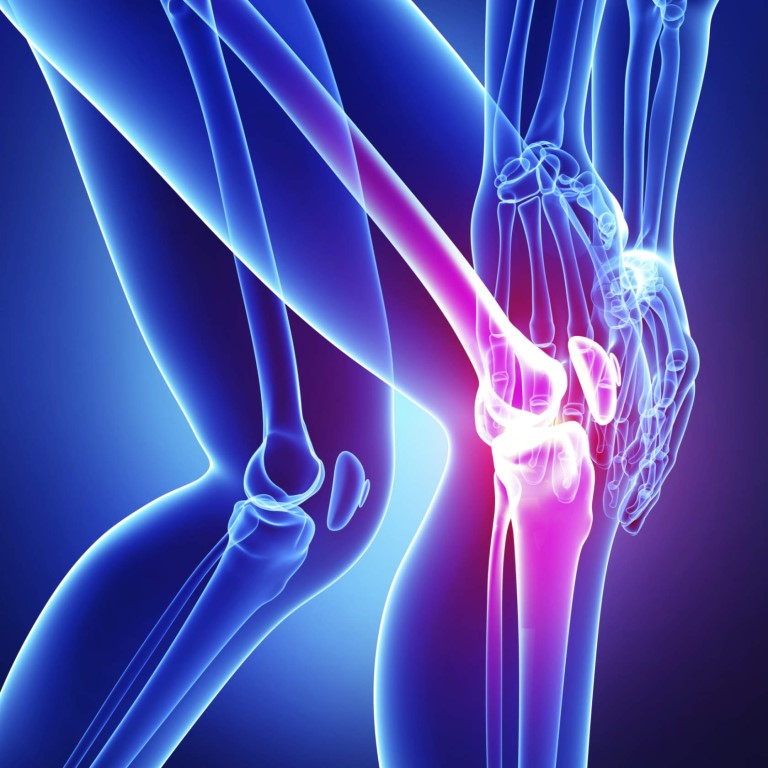 МРТ коленного сустава что показывает 🚩 показания и противопоказания