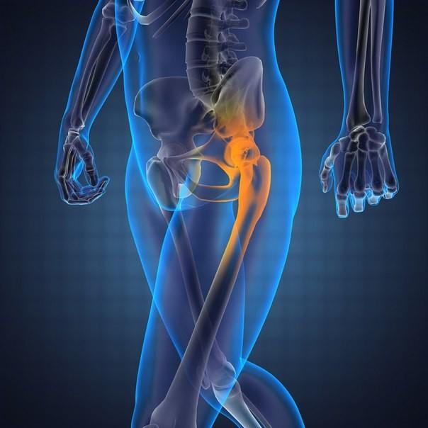 компьютерная томография бедренной кости
