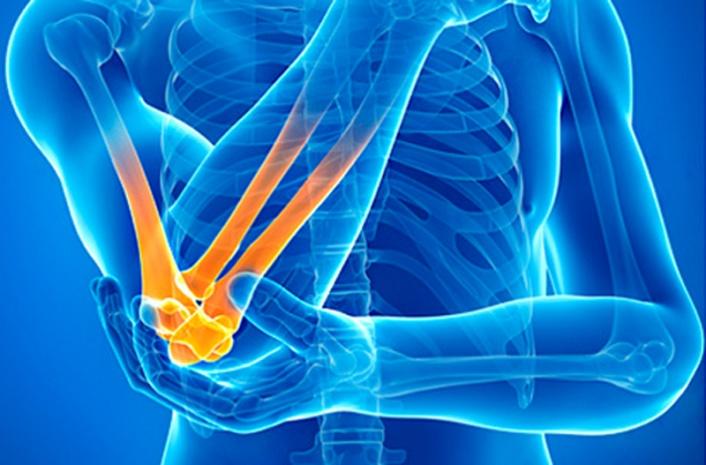 Остеохондроз 3 коленного сустава лечение