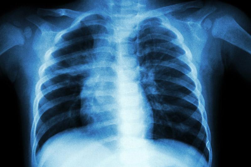 Сделать рентген легких в Москве